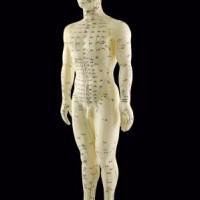 Skinnebensbetændelse kan behandles med akupunktur